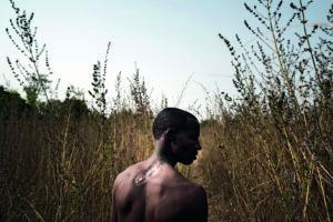 Dicko Hdiana, allevatore della Costa D'Avorio gravemente ferito durante gli scontri del 2016 tra le comunità di allevatori e agricoltori.