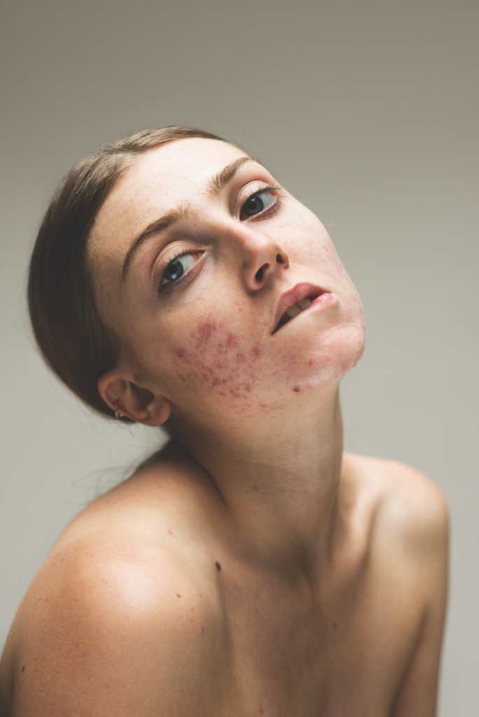 Louisa, dalla recente serie Epidermis.