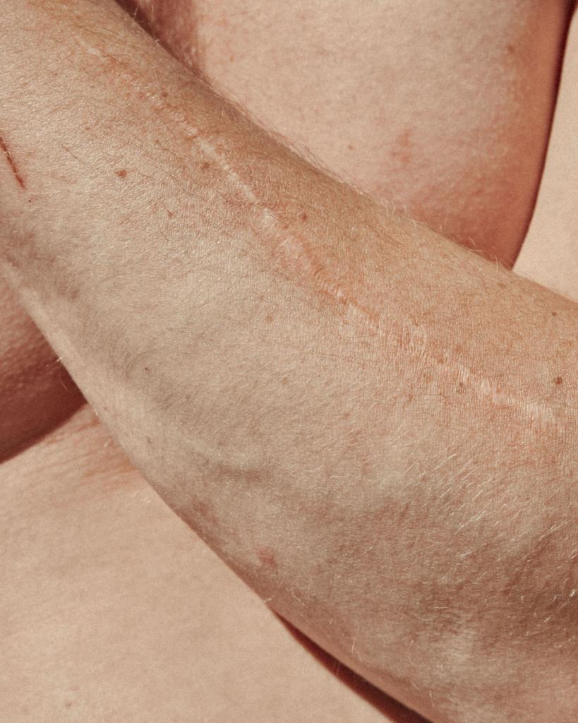 Particolare di braccio con cicatrice © Maddalena Arcelloni